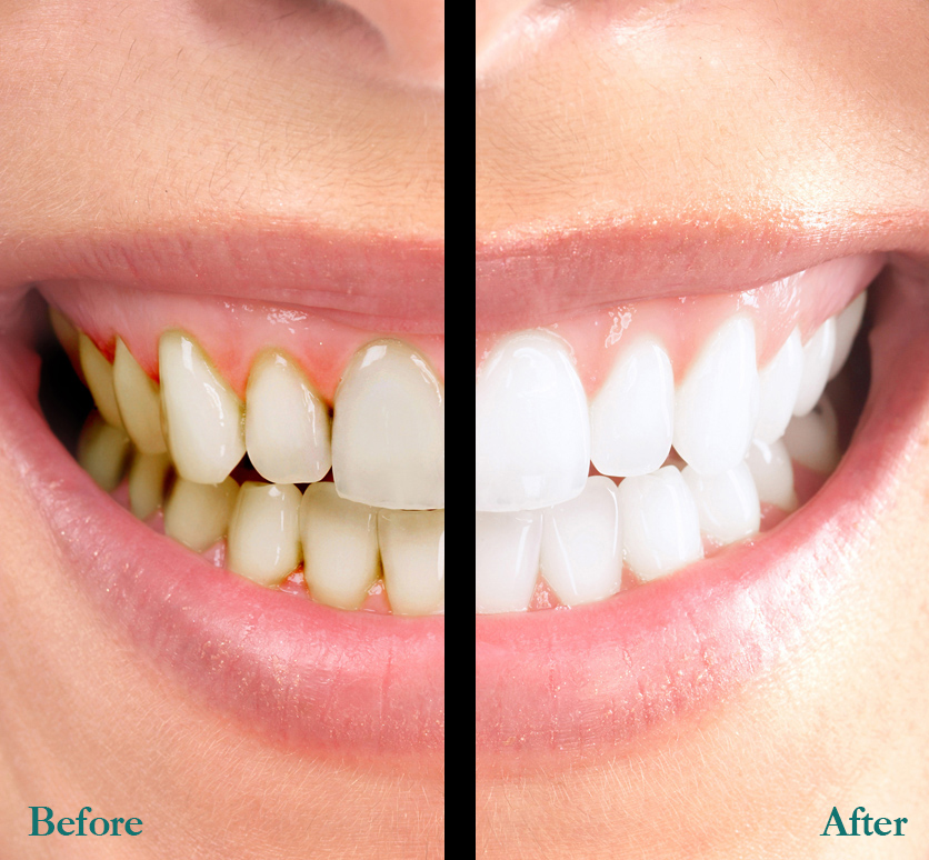 Teeth whitening in Northamptonshire