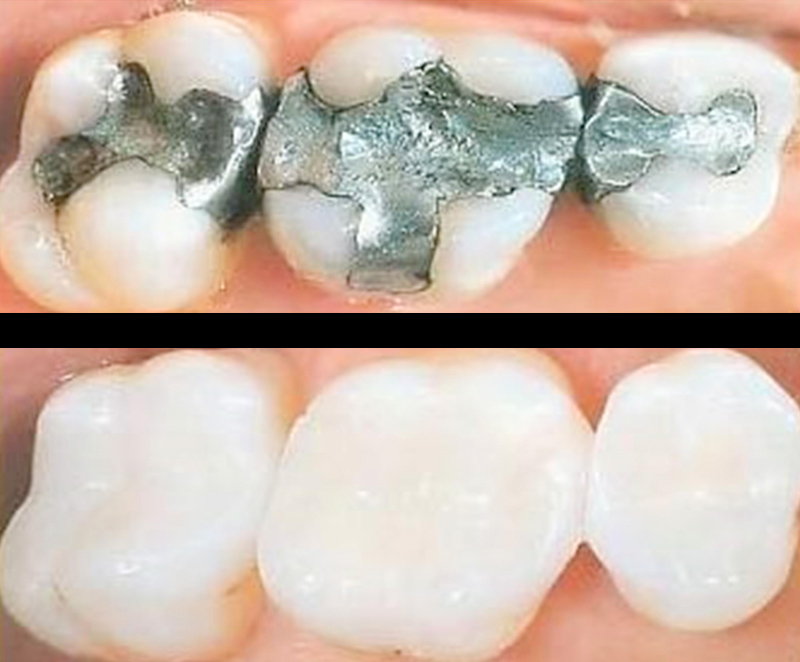 White tooth coloured fillings